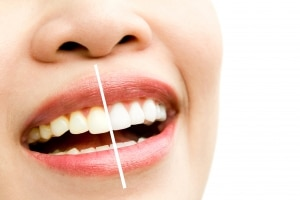 Teeth Whitening Mountain View CA